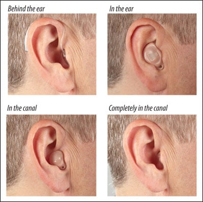 Behind the ear (BTE), in the ear (ITE), in the canal (ITC), and completely in the canal (CIC). Photos courtesy of Starkey Laboratories, Inc.